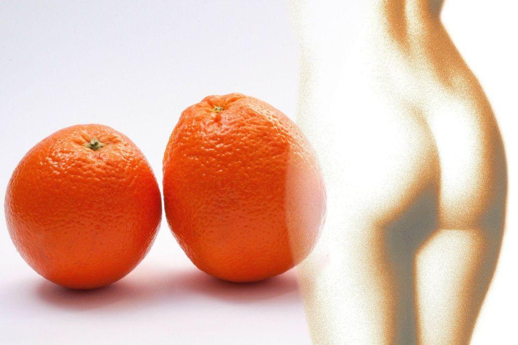 cellulit, a więc pomarańczowa skórka